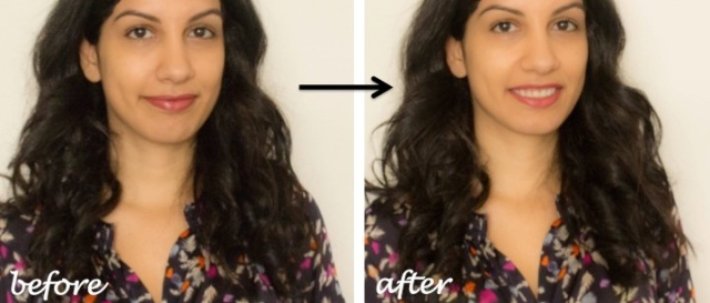 concealing dark circles before and after